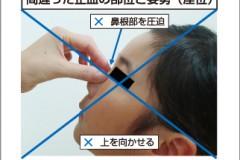 間違った止血方法~広島県医師会より~